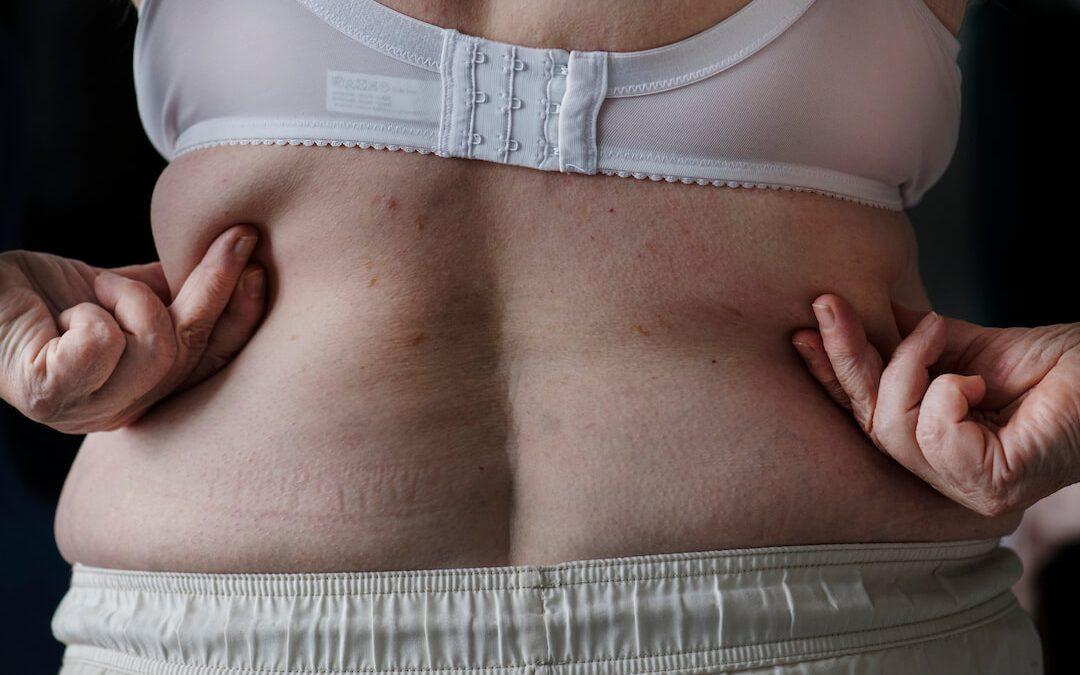 Obezita – problém dnešnej doby